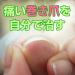 巻き爪矯正治療を自分で!楽天通販ワイヤー巻き爪ブロックの使い方効果口コミ